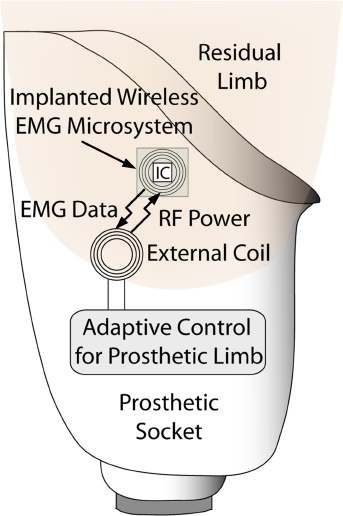 emg ieee 1128 ieee transactions on biomedical engineering, vol 55, no 3, march 2008 online electromyographic control of a robotic prosthesis pradeep shenoy , kai j miller, beau crawford, and rajesh p n rao.